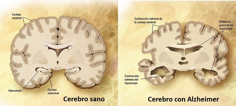 Cerebro-Alzheimer