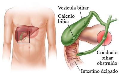 calculo biliar