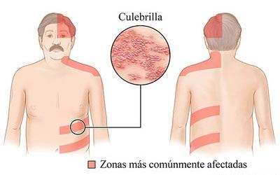 herpes-culebrilla