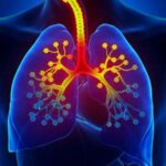 pulmones-asma-bronquitis