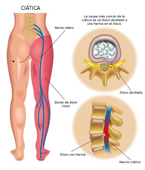 quitar dolor ciatica