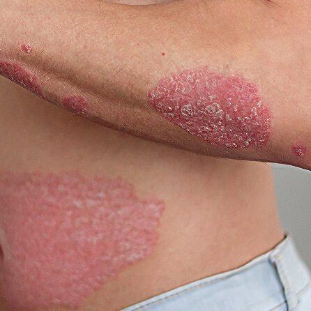 sanar-eczema-psoriasis