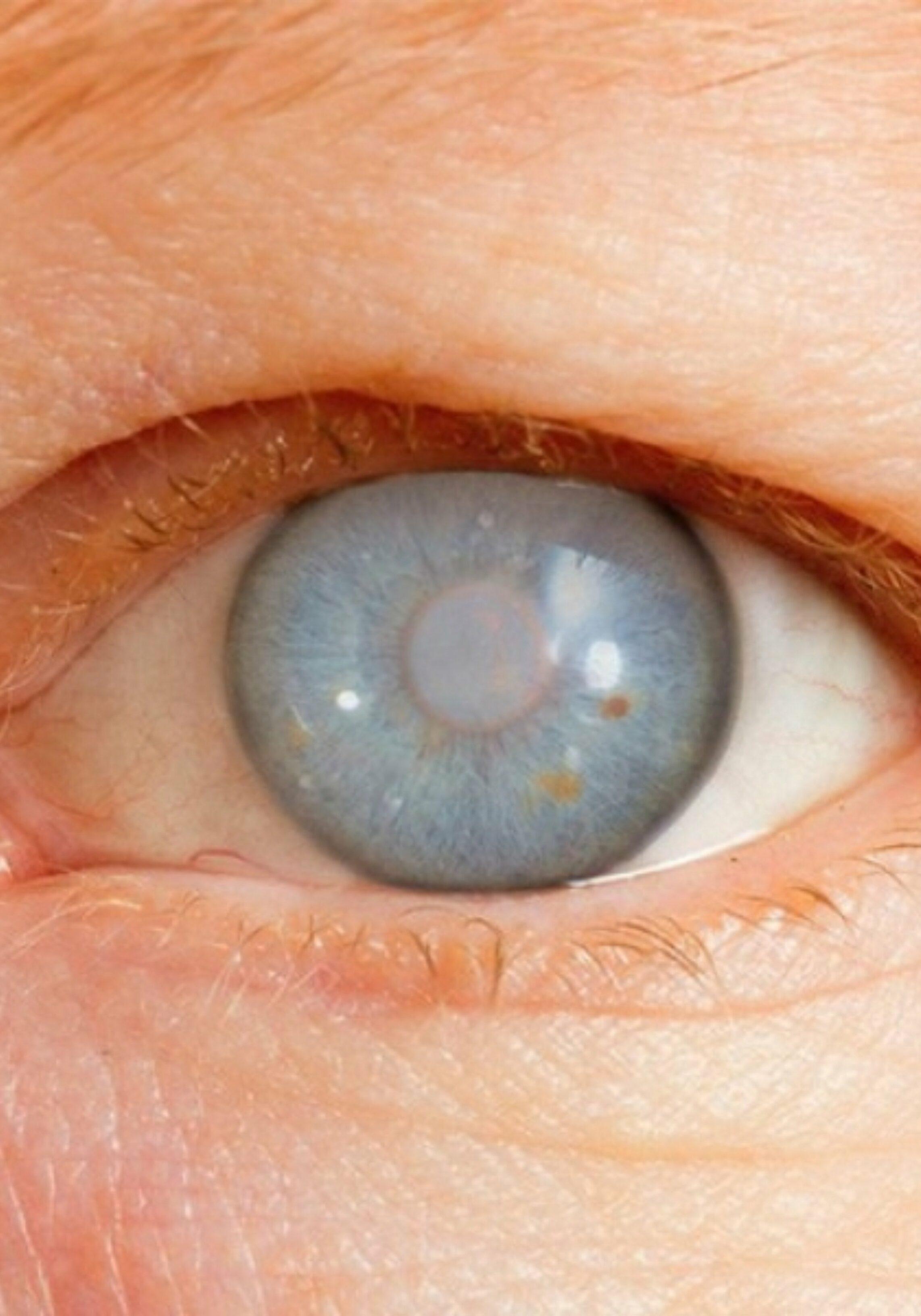 sanar-glaucoma-cataratas
