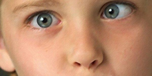 ojo-vago-o-perezoso