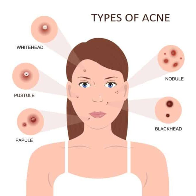 como sanar acne-espinillas-granos